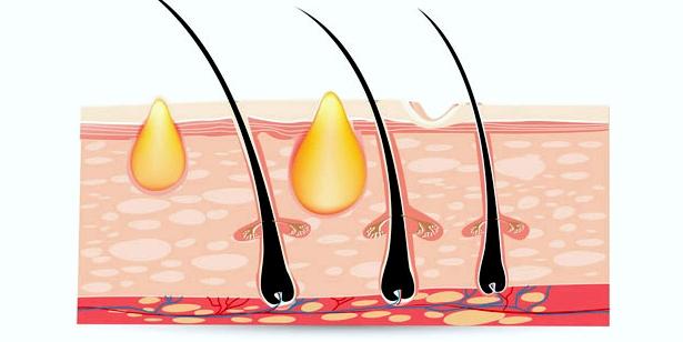 In der Pubertät erhöht sich die Talg-Produktion, zugleich werden vermehrt Hornzellen an der Hautoberfläche gebildet. Die talgtransportierenden Drüsengänge verschließen sich, es entstehen Mitesser, die durch Bakterien zu  Eiter-Pickeln anwachsen=' können