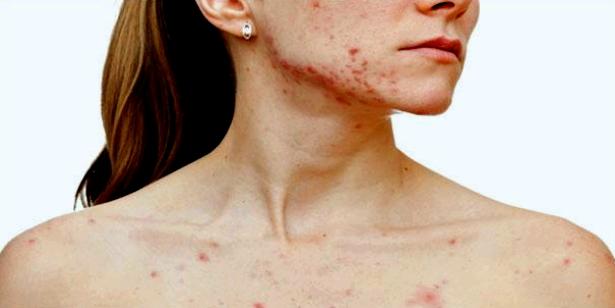 Die charakteristischen Symptome einer Akne sind Mitesser, eitergefüllte Pickel und rote Knötchen