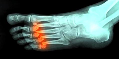 Knochen nach einem Bruch nicht richtig verheilt
