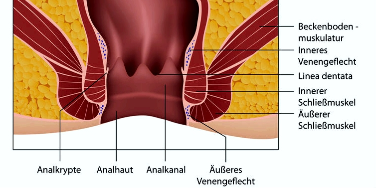 Bei einer Analfissur kommt es zu einem Riss im Bereich des Analkanals