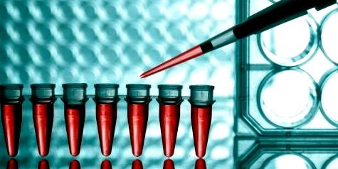 Mit speziellen Bluttests und Gewebeproben wird bei einer Autoimmunkrankheit das Auftreten von Abwehr-Zellen nachgewiesen, die sich gegen den eigenen Körper richten
