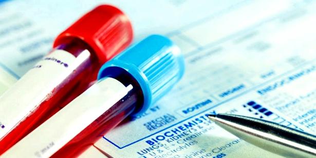 Blutprobe auf Blutvergiftung