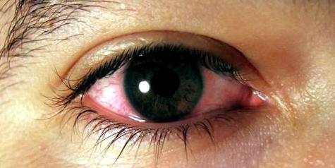 Augen länger als drei Tage gerötet zum Augenarzt
