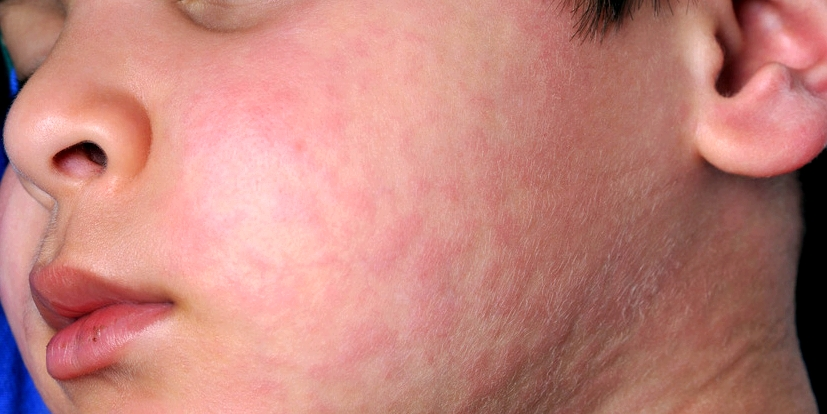 Bei Mumps bekommt der Patient die für Mumps typischen Hamsterbacken