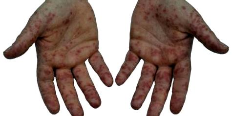 Typische Symptome bei Röteln sind Rötungen an den Händen