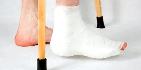 Knochen heilen nach 6-8 Wochen