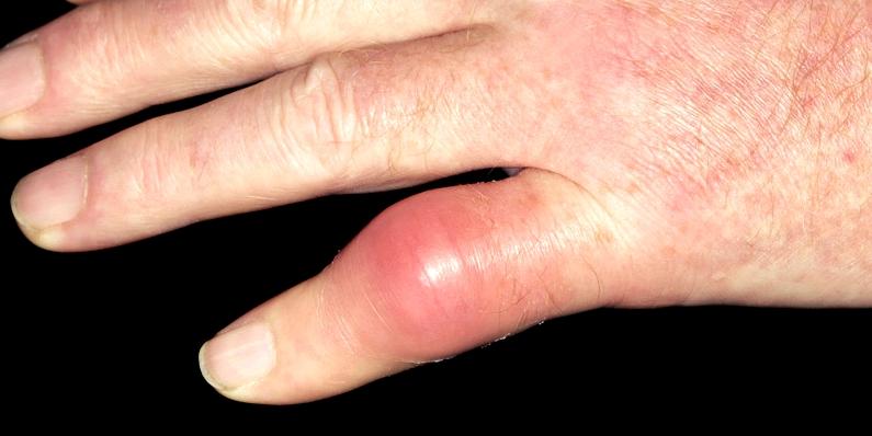 Schwellungen an den Gelenken sind typische Gicht-Symptome
