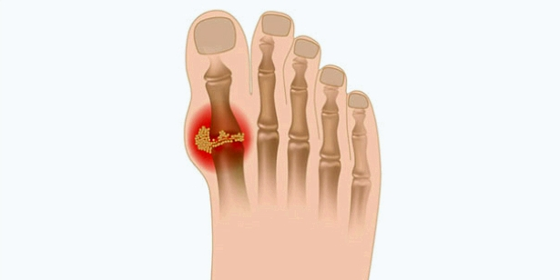 Gichtbeschwerden treten häufig zuerst in den Gelenken der großen Zehe auf
