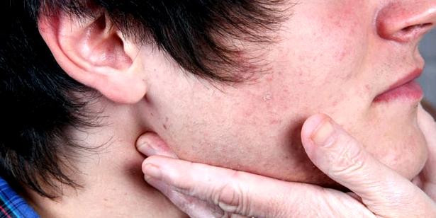 Geschwollene Lymphknoten durch Leishmaniose