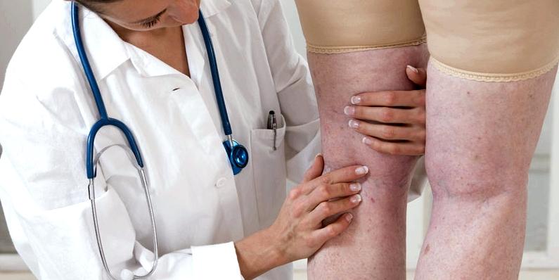 Arzt bei der Krampfadern-Diagnose