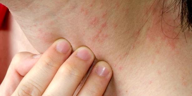 Kontaktekzem schädigen die Haut