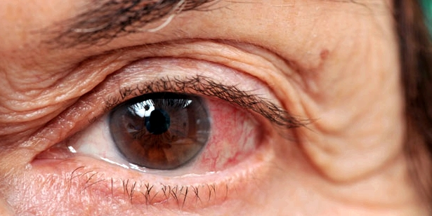 Bei einer Übersäuerung kann es zu einer Rotfärbung der Bindehaut des Auges kommen