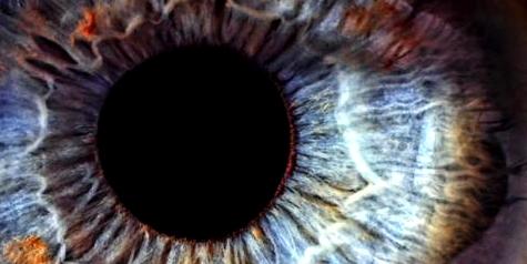 Bei einem Grünen Star ist der Augeninnendruck zu groß
