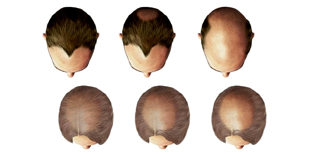Typische Entwicklung des Haarausfalls bei Männern (oben) und bei Frauen (unten)