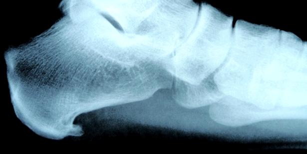 Im Röntgenbild ist der dornartige Fortsatz deutlich zu erkennen