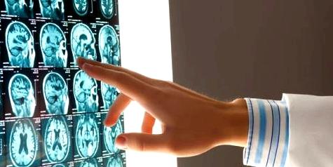 MRT-Bilder mit Hirntumor
