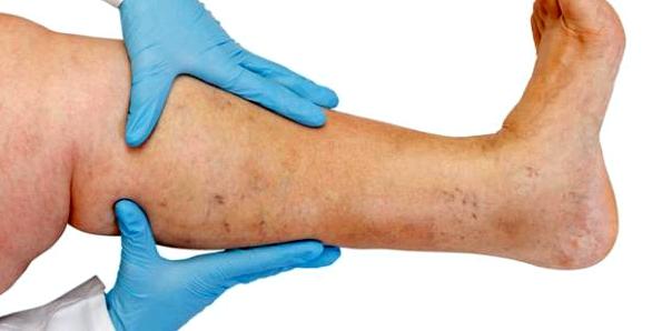 Bei Krampfadern helfen neuartige schmerzfreie Verfahren: Die kranke Vene wird ultraschallkontrolliert verschlossen mit Laser- oder Radiowellen