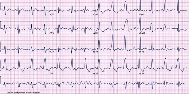 EKG erkennt Herzrhythmusstörungen
