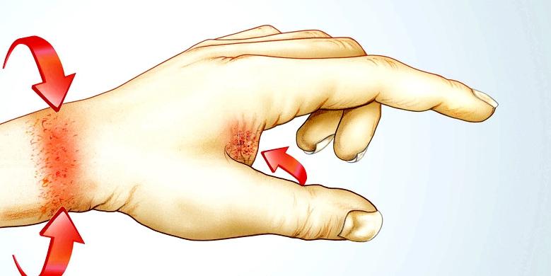 Kontaktallergie Handgelenk