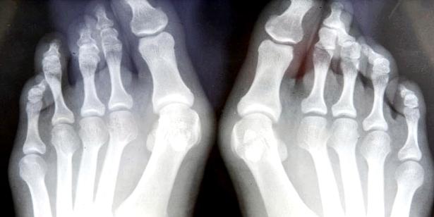 Röntgenbild zeigt Zehenfehlstellung