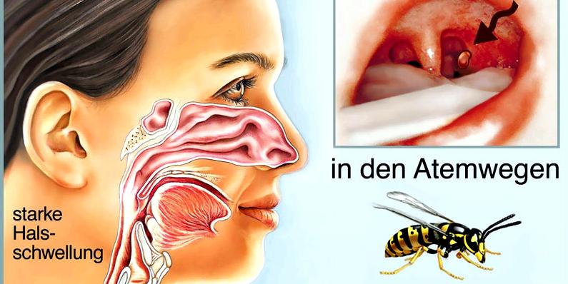 Insektenstich in den Atemwegen