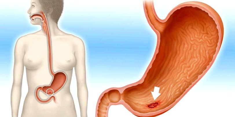 Auch Tumoren oder Geschwüre, zum Beispiel ein Magengeschwür, können innere Blutungen auslösen