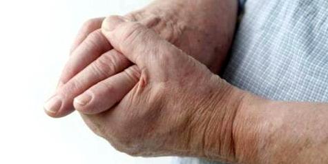 Wenn Finger-Gelenke plötzlich schmerzen