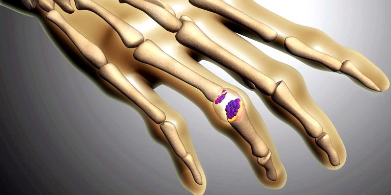 Kristallbildungen in den Gelenken sind die Ursache für Schmerzen und Schwellungen