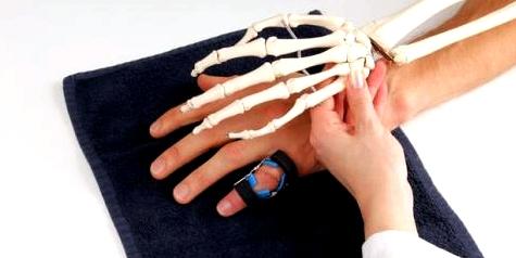 Arthritis beginnt in den kleinen Gelenken.