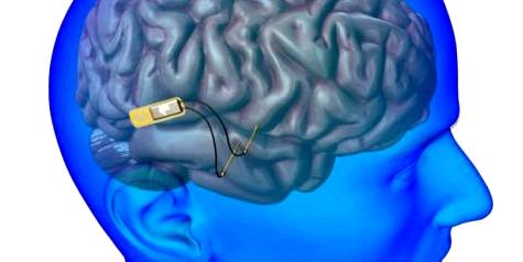 Mikrochip im Kopf