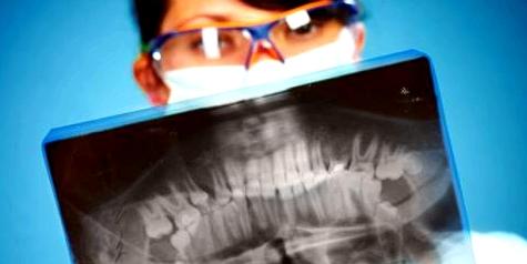 Zahnschmerzen können körperliche Ursachen haben und verschiedene Erkrankungen auslösen