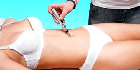 Bei der Laser-Akupunktur werden mit gebündelten Licht Heilpunkte gereizt