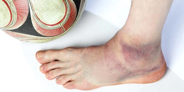 Bei bestimmten Bänderriss-Arten bilden sich häufig Blutergüsse um den verletzten Bereich