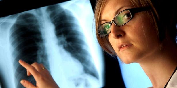 Röntgenbild zur Lungenkrebsdiagnose