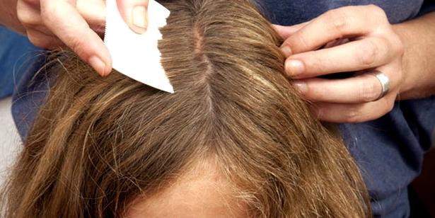Läusekamm bei Kopfläusen