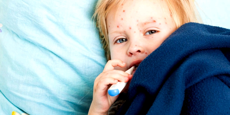 Kind im Bett mit Masern