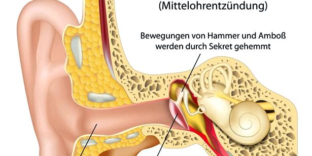 Bei einer Mittelohrentzündung entzünden sich die Schleimhäute