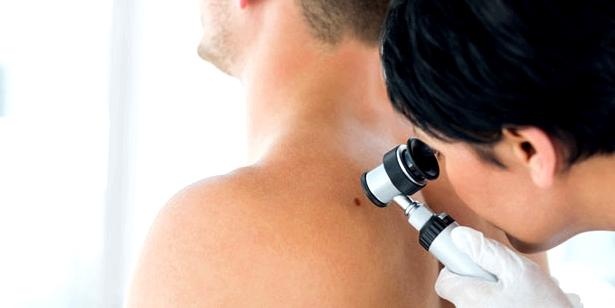Dermatologe untersucht Hautbild auf Milien