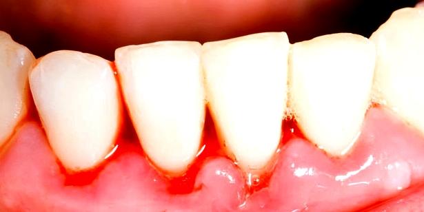 Zahnfleischbluten ist ein typisches Symptom für Parodontitis