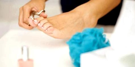 Zehennägel immer mit Nagelschere schneiden