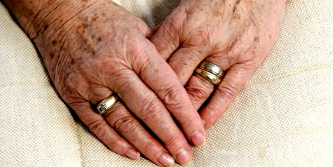 Hautveränderungen zeigen sich bevorzugt auf dem Handrücken oder im Gesicht.