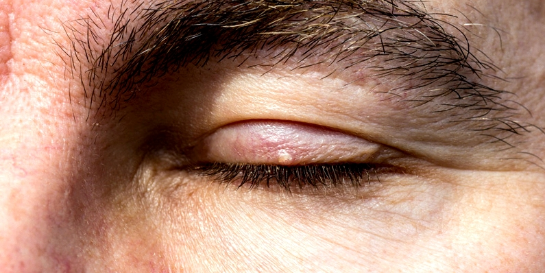 Milien auf dem Augenlid