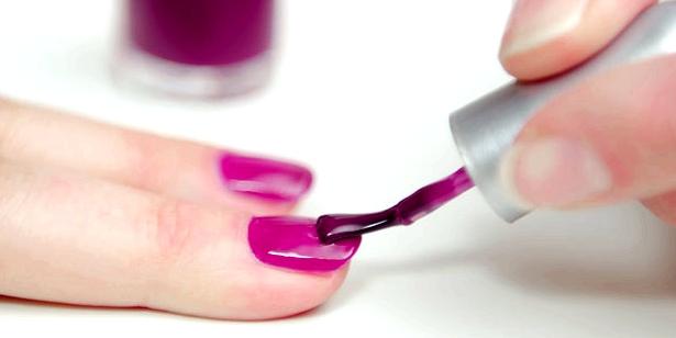 Weiße Nagelverfärbungen können durch übertriebene Maniküre entstehen