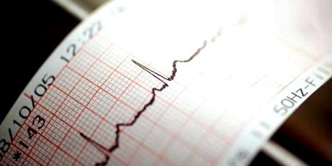 EKG zeigt Herzrhythmusstörungen an