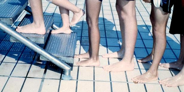 Die Ansteckung mit Warzen bzw. Dornwarzen ist im feucht-warmen Schwimmbad besonders wahrscheinlich